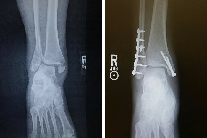 broken and fixed ankle xray
